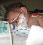 Pneumonia among leading causes of death in children