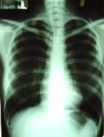 XDR TB has re-awakened focus on TB