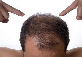 Early baldness may be a risk factor for prostate cancer