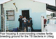 High TB rates in Cape Town suburbs point to huge inequities