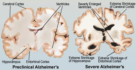 Alzheimer's Disease: Forgetting about the elderly