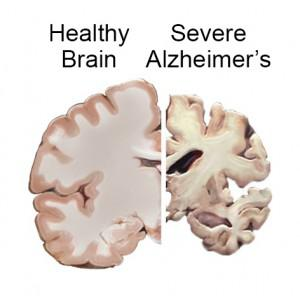 Comparison between a healthy brain and that of a person with advanced Alzheimer's disease.
