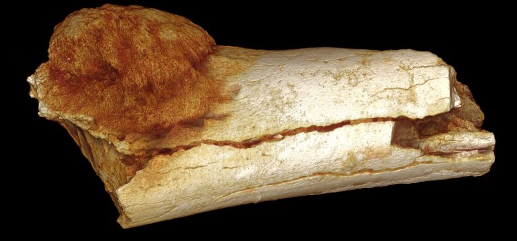 Prehistoric bone cancer discovered by local researchers