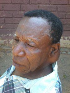 Man with lump 3