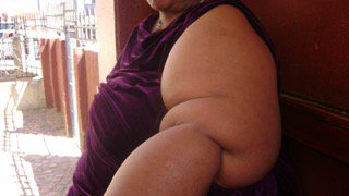 Living with lymphedema after surviving cancer