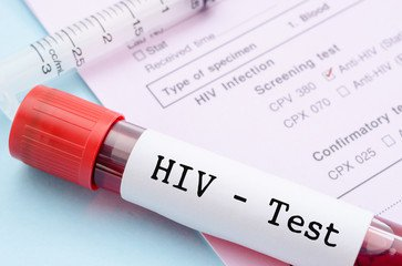 London man is 'cured' of HIV