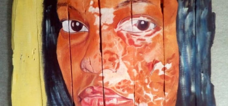 Township artist uses art to celebrate unique skin