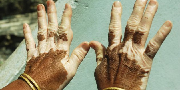 Vitiligo is treatable but not curable