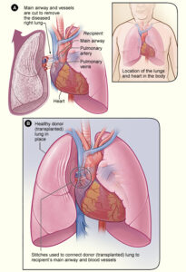 How a lung transplant works