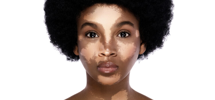 World Vitiligo Day: Time to embrace it and forget about a cure