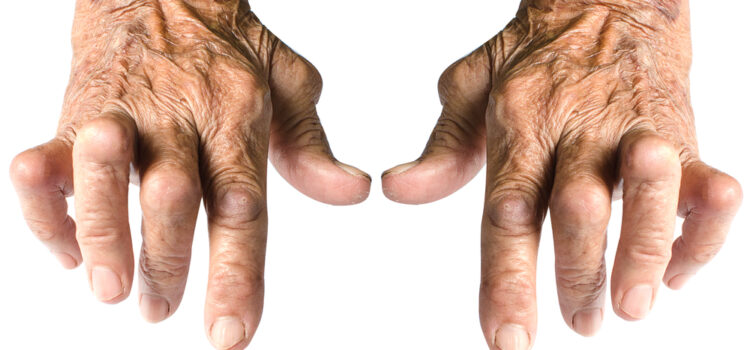What is Rheumatoid Arthritis? The experts weigh in.